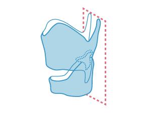 喉頭(背面)