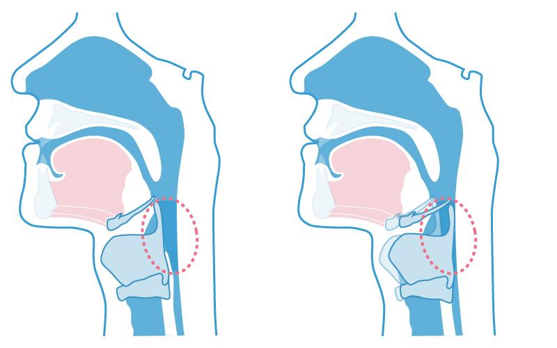 喉頭の埋まり込み